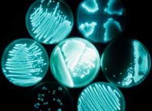 Отличие кишечных инфекций от пищевых отравлений